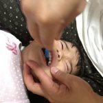 子どもの歯に茶色の筋が…色素沈着?取り方は?フッ素で虫歯予防も忘れずに!