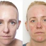 【化粧したまま寝る実験】シミや肌荒れなどの影響も! 化粧落とさず寝てしまった時の対処法5つ!!