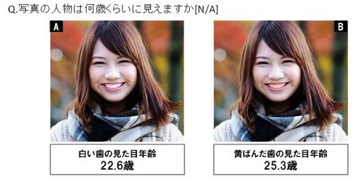 歯の色の違いによる見た目年齢