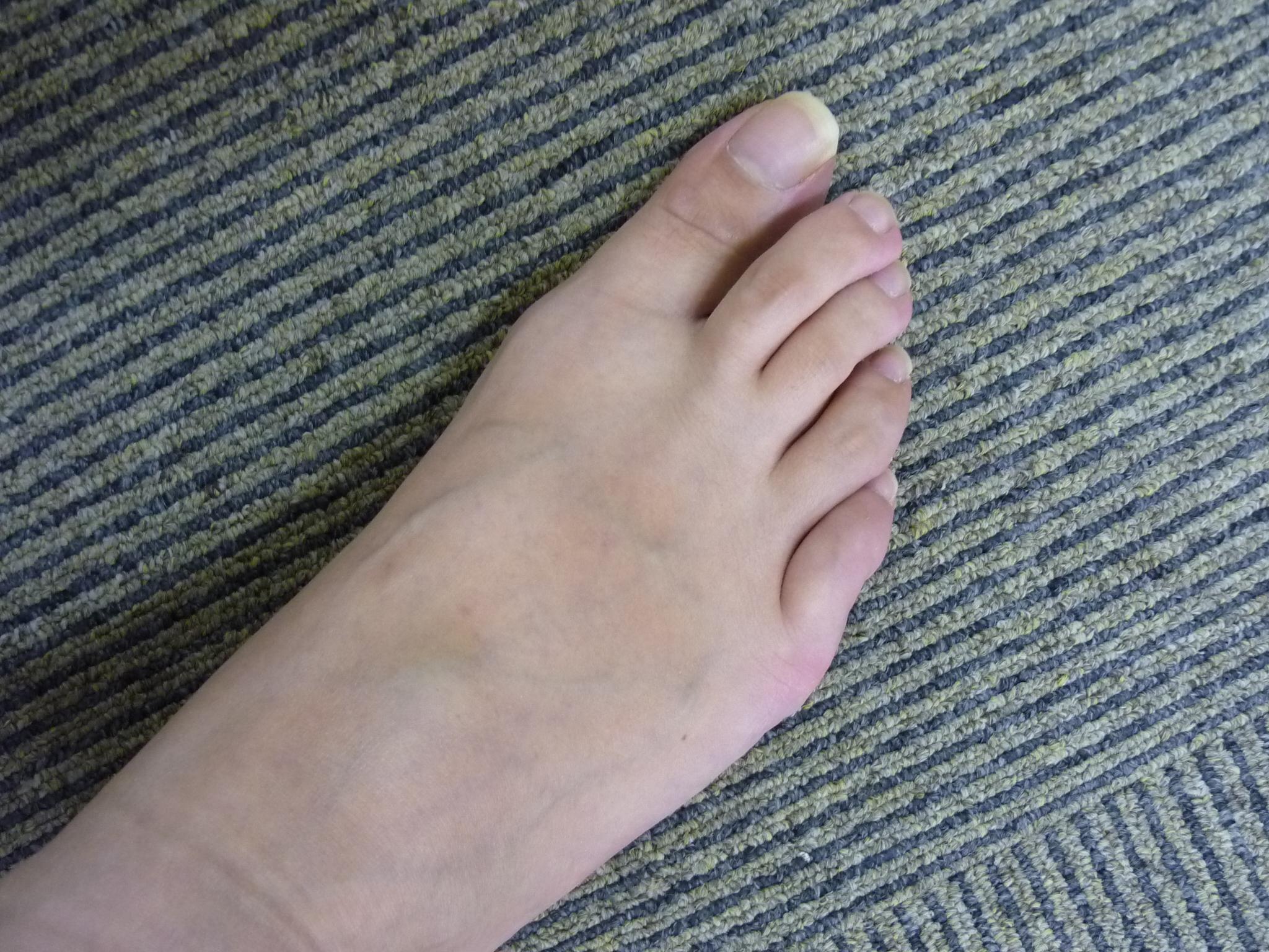 ブーツを脱ぐと異臭騒ぎ!?愛猫も逃げ出すほど足がクサイ私が人前でブーツを脱げたその理由とは!