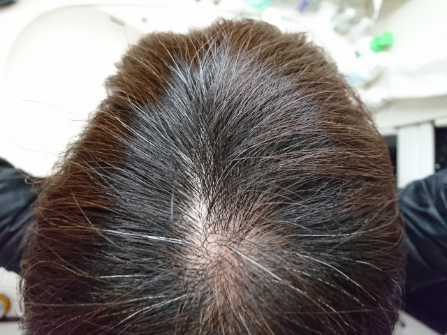 白髪を減らす方法は納豆?シャンプーやサプリも?20代も効果あり?